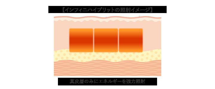 インフィニハイブリットの照射イメージ